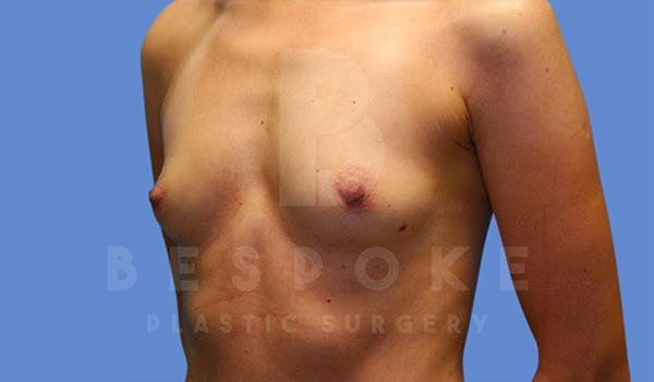 Breast Augmentation Gallery - Patient 4815688 - Image 3