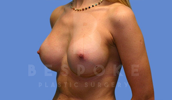 Breast Augmentation Gallery - Patient 4815688 - Image 4
