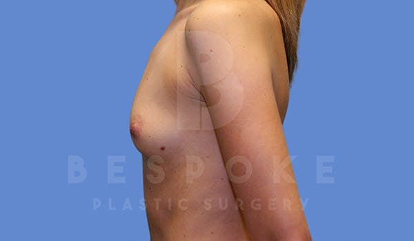 Breast Augmentation Gallery - Patient 4815688 - Image 5