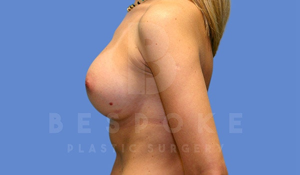 Breast Augmentation Gallery - Patient 4815688 - Image 6