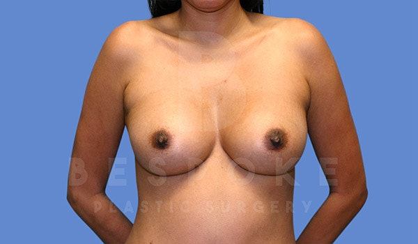 Breast Augmentation Gallery - Patient 4815687 - Image 2