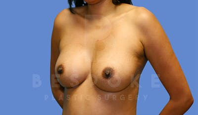 Breast Augmentation Gallery - Patient 4815687 - Image 4