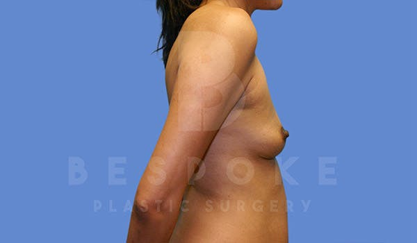 Breast Augmentation Gallery - Patient 4815687 - Image 5