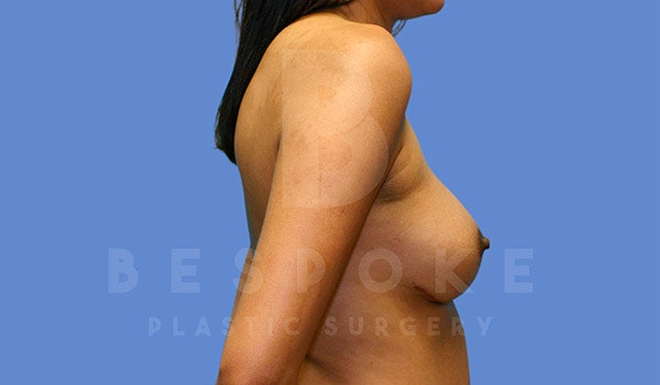 Breast Augmentation Gallery - Patient 4815687 - Image 6