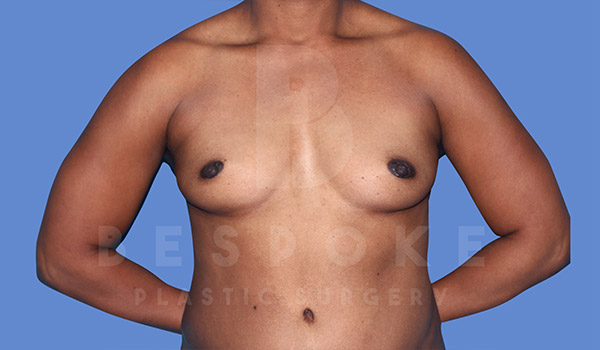 Breast Augmentation Gallery - Patient 4815689 - Image 18