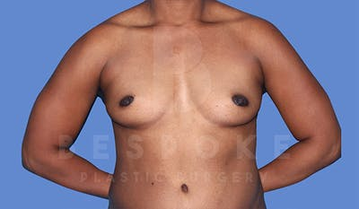 Breast Augmentation Gallery - Patient 4815689 - Image 1