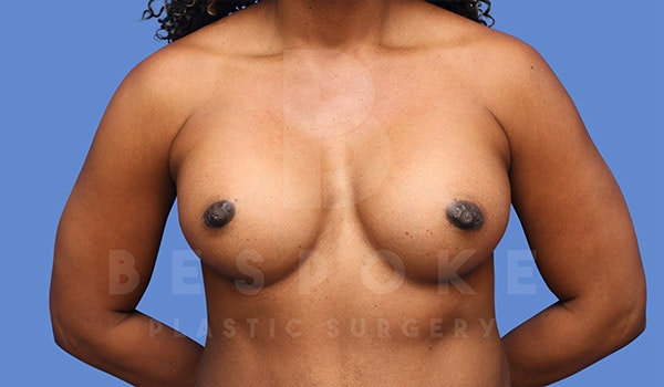 Breast Augmentation Gallery - Patient 4815689 - Image 2