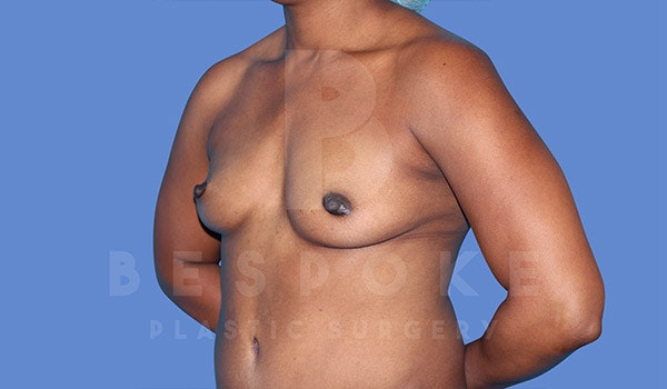 Breast Augmentation Gallery - Patient 4815689 - Image 3