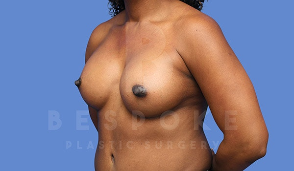 Breast Augmentation Gallery - Patient 4815689 - Image 4