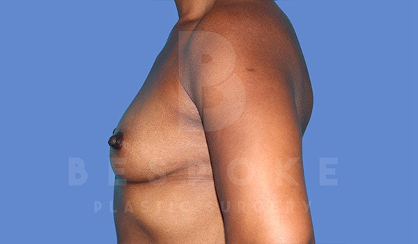 Breast Augmentation Gallery - Patient 4815689 - Image 5