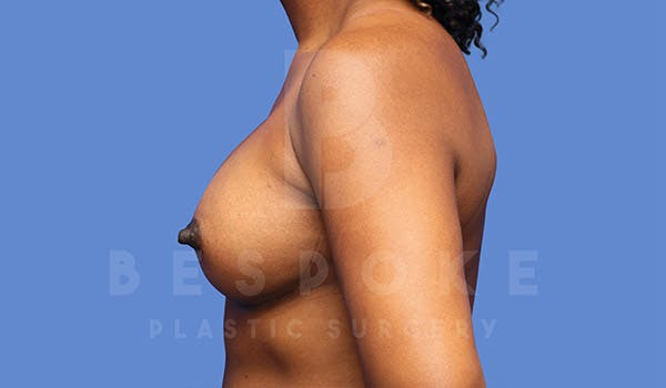 Breast Augmentation Gallery - Patient 4815689 - Image 6