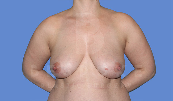 Breast Lift With Implants Gallery - Patient 4815703 - Image 7