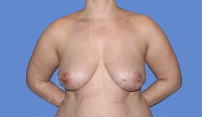 Breast Lift With Implants Gallery - Patient 4815703 - Image 1