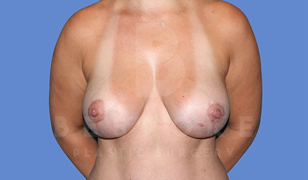 Breast Lift With Implants Gallery - Patient 4815703 - Image 2