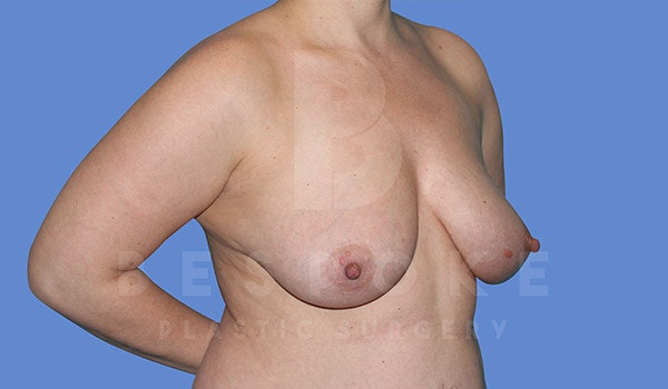 Breast Lift With Implants Gallery - Patient 4815703 - Image 3