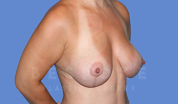 Breast Lift With Implants Gallery - Patient 4815703 - Image 4