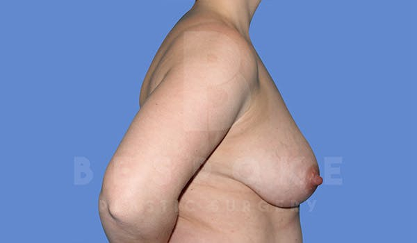 Breast Lift With Implants Gallery - Patient 4815703 - Image 5