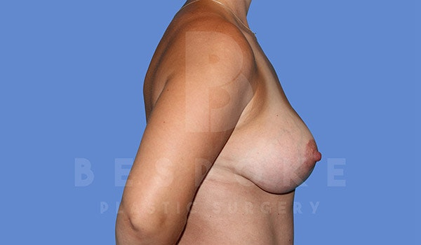 Breast Lift With Implants Gallery - Patient 4815703 - Image 6