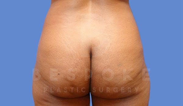 Brazilian Butt Lift Gallery - Patient 4815706 - Image 1