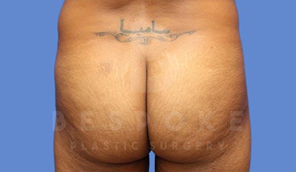 Brazilian Butt Lift Gallery - Patient 4815707 - Image 1