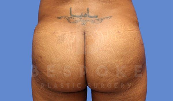 Brazilian Butt Lift Gallery - Patient 4815707 - Image 2