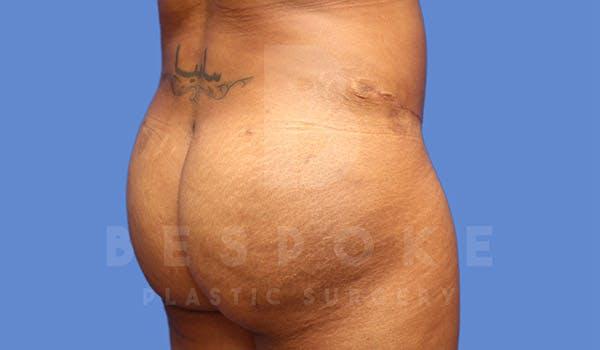 Brazilian Butt Lift Gallery - Patient 4815707 - Image 4