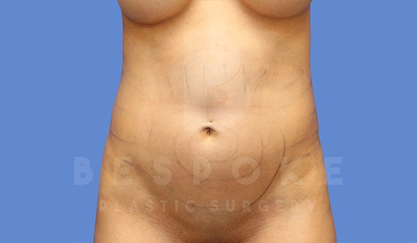 Liposuction Gallery - Patient 4815730 - Image 1