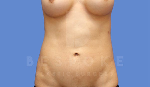 Liposuction Gallery - Patient 4815730 - Image 2