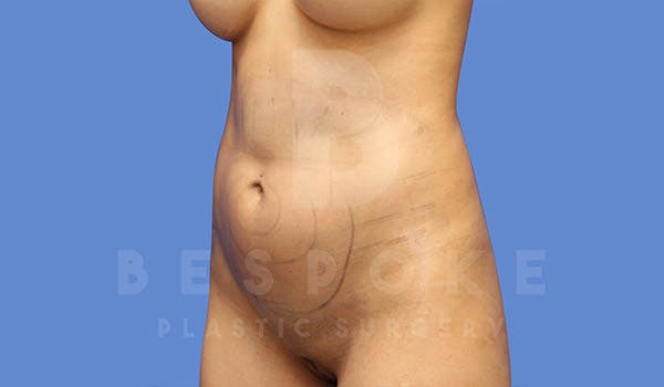 Liposuction Gallery - Patient 4815730 - Image 3