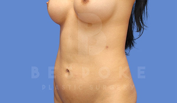 Liposuction Gallery - Patient 4815730 - Image 4