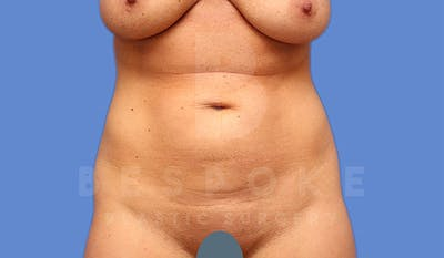 Liposuction Gallery - Patient 4815731 - Image 1