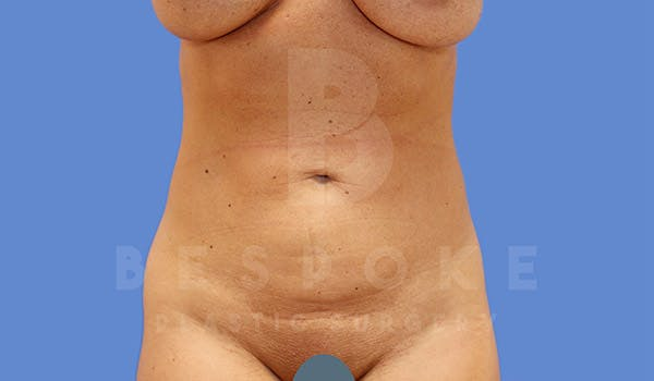 Liposuction Gallery - Patient 4815731 - Image 2