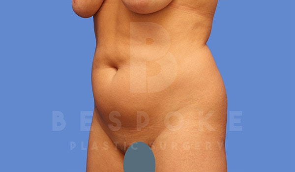 Liposuction Gallery - Patient 4815732 - Image 3