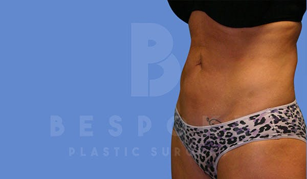 Liposuction Gallery - Patient 4815733 - Image 4