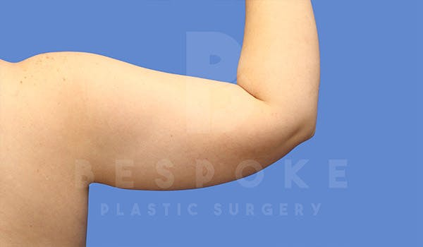 Liposuction Gallery - Patient 4815734 - Image 3