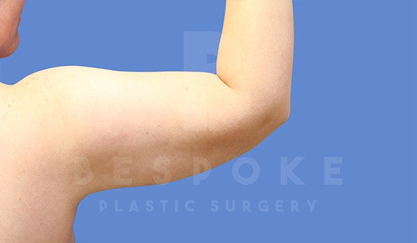 Liposuction Gallery - Patient 4815734 - Image 4