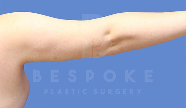 Liposuction Gallery - Patient 4815734 - Image 6