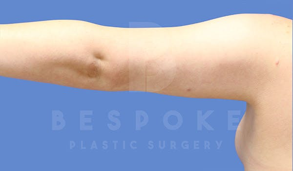 Liposuction Gallery - Patient 4815734 - Image 8