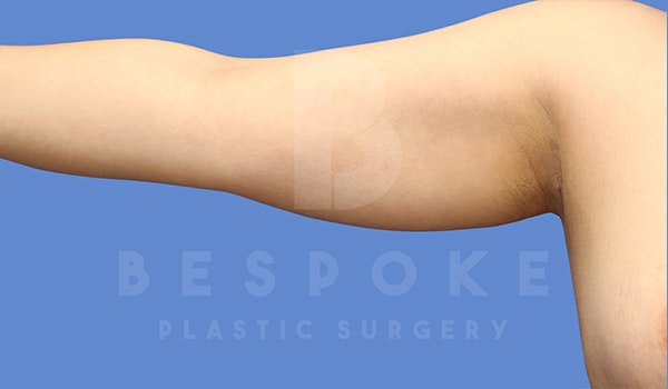 Liposuction Gallery - Patient 4815734 - Image 1