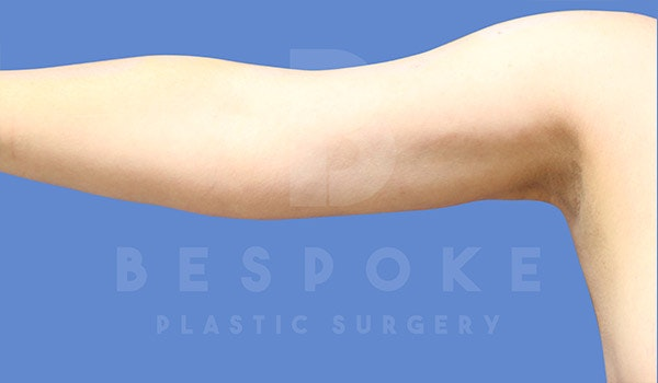 Liposuction Gallery - Patient 4815734 - Image 2