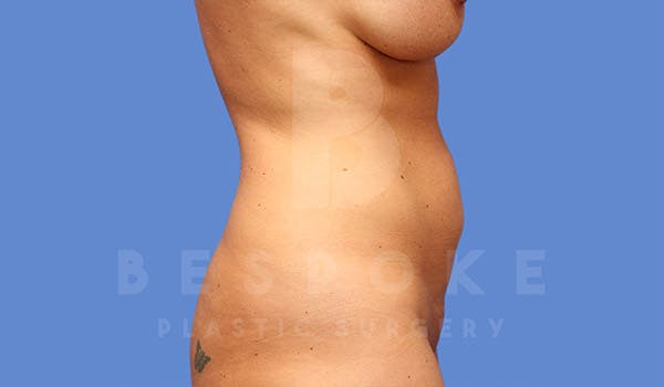 High Def Lipo Gallery - Patient 4815818 - Image 1