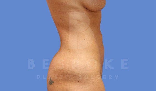 High Def Lipo Gallery - Patient 4815818 - Image 2