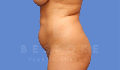 High Def Lipo Gallery - Patient 4815819 - Image 1