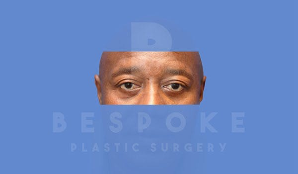 Male Eyelid Surgery Gallery - Patient 4819702 - Image 2