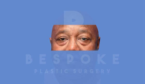 Male Eyelid Surgery Gallery - Patient 4819702 - Image 1