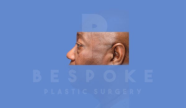 Male Eyelid Surgery Gallery - Patient 4819702 - Image 3