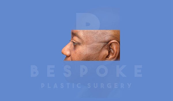 Male Eyelid Surgery Gallery - Patient 4819702 - Image 4