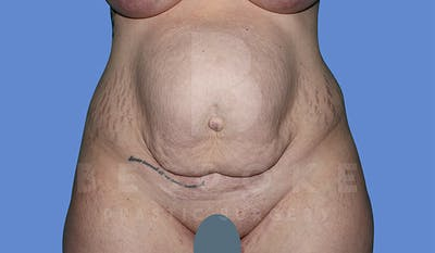 Massive Weight Loss Gallery - Patient 4842394 - Image 1