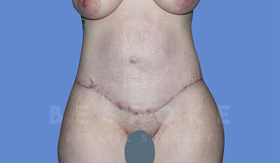 Massive Weight Loss Gallery - Patient 4842394 - Image 2