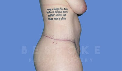 Massive Weight Loss Gallery - Patient 4842394 - Image 6